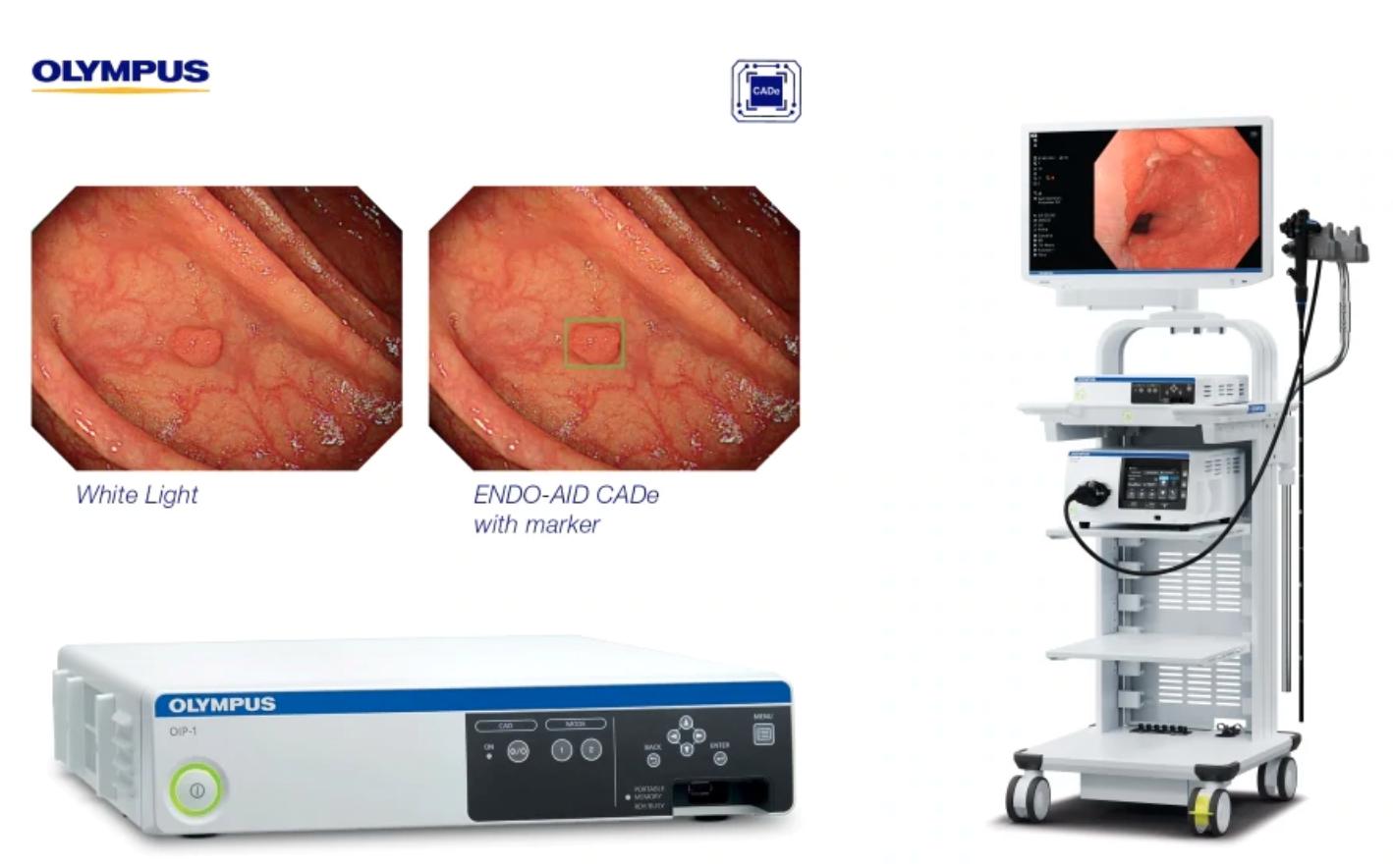 オリンパス、AI内視鏡CADプラットフォーム 欧州・アジアで導入へ
