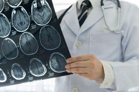 診断精度で医師を超えた中国の医療人工知能